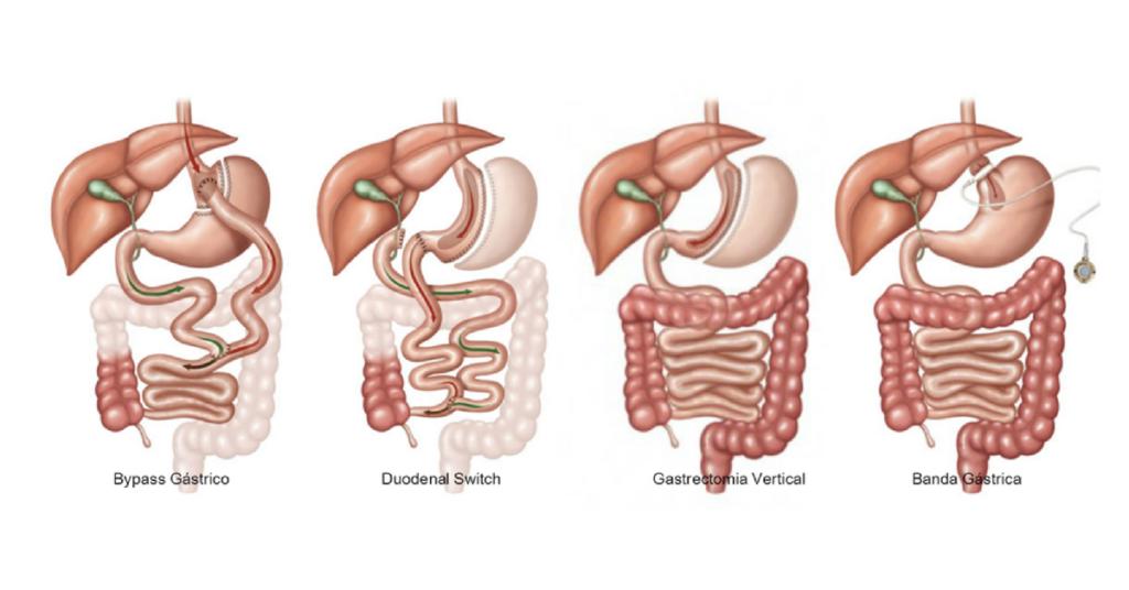 Cirurgias Bariátricas- O que são, quais as indicações e quem realiza Sallet